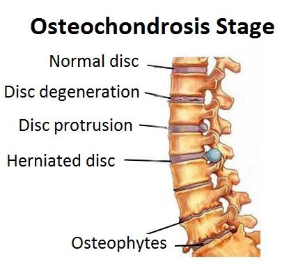 ოსტეოქონდროზის მკურნალობა